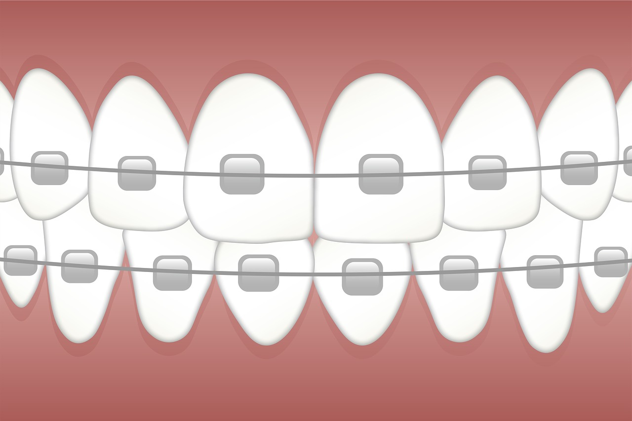 braces-3597591_1280